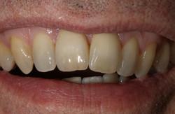 Zirkonkrone auf Implantat Zahn 11