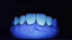 Natürliche Fluoreszenz