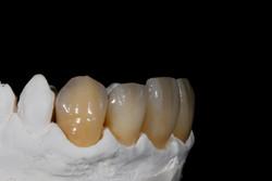 Zirkonkronen Frontzähne