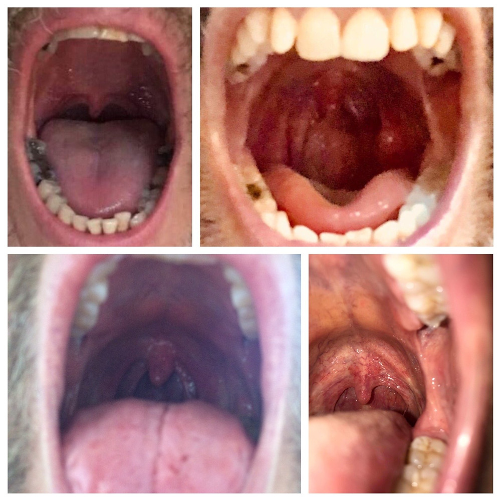 A selection of Resound members' vela. The velum is the tissue at the back of your throat and the uvula hangs from it.