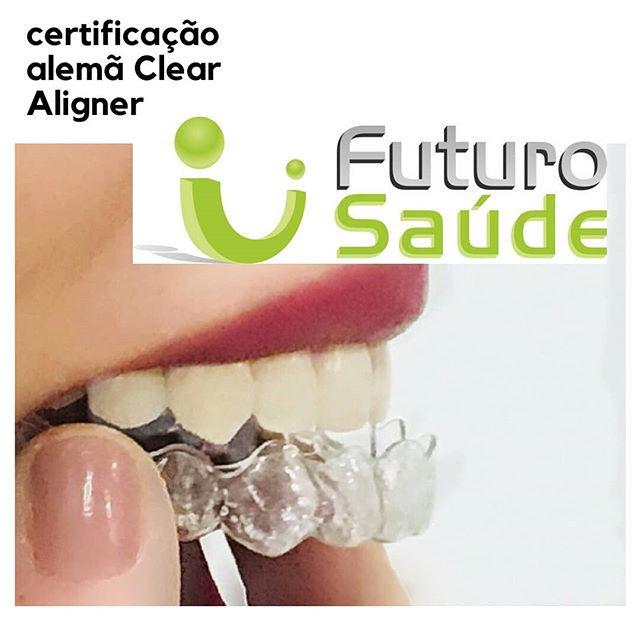 clear aligner, aparelho invisível,ortodontia em Osasco