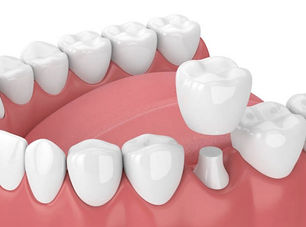 Dental-Crowns-768x570.jpeg
