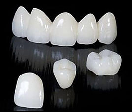 full_zirconia_restorations.jpg
