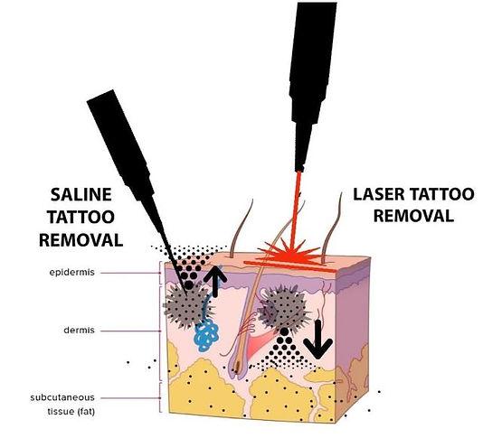 Saline Tattoo Removal.JPG
