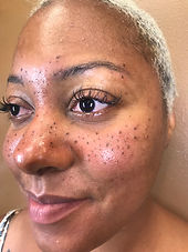 leslie freckles.jpg