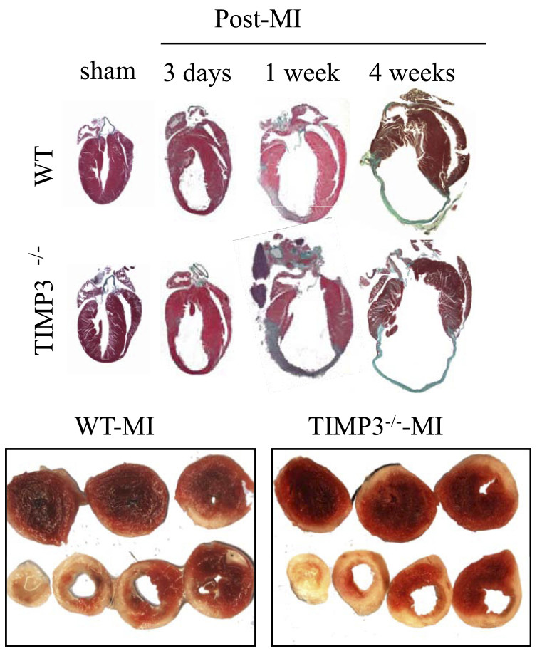Lack of TIMP3 severely increased left ventricular (LV) dilation and infarct expansion post-MI. (Kandalam et al., American Journal of Physiology: Heart and Circulatory Physiology, 2010.)