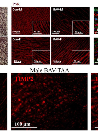 Bicuspid aortic valve-associated TAA shows a sex-dependent MMP/TIMP axis, collagen remodelling and smooth muscle cell survival pattern.  (Lee et al., Journal of Molecular Medicine, 2014.)