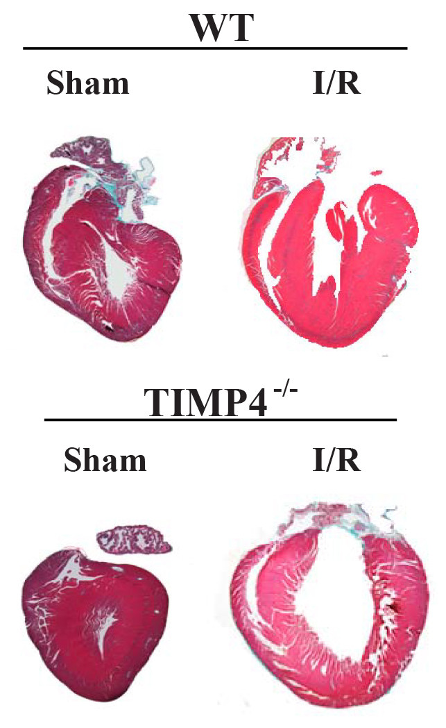 TIMP4 deficiency excerbates I/R injury induced cardiac fibrosis and hypertrophy.  (Takawale, et al., Circulation: Heart Failure, 2014.)
