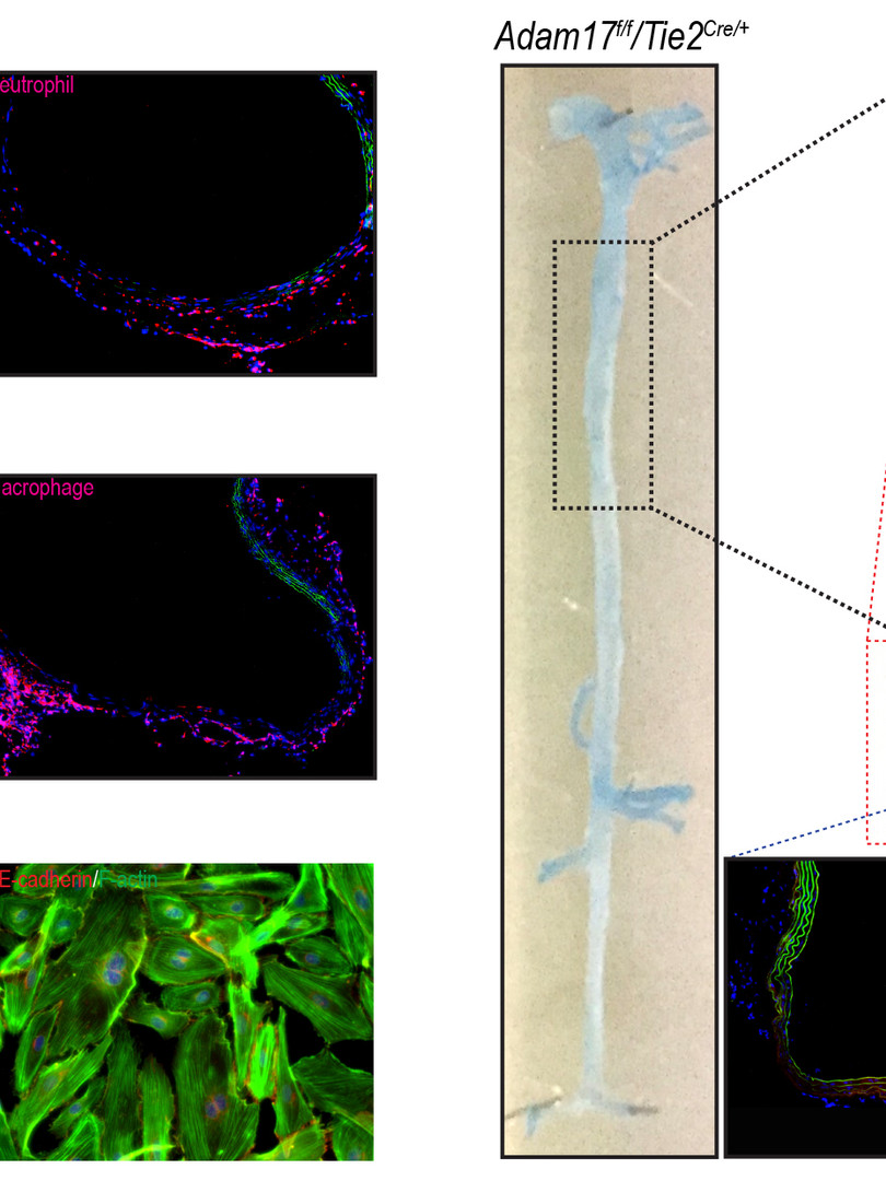 Endothelial ADAM17 deficiency preserves elastase-induced endothelial barrier disruption.(Shen et al., Circulation Research, 2018.)