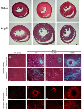 Ang II infusion resulted in enhanced myocardial hypertrophy but lack of fibrosis in TIMP2-deficient mice, and conversely, excess fibrosis without hypertrophy in TIMP3-deficient mice. (Fan et al., Cardiovascular Research, 2014.)