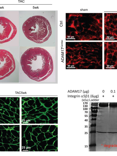 Loss of ADAM17 in cardiomyocytes promotes pressure overload-induced hypertrophy by reducing the cleavage of cardiac integrin β1. (Fan et al., Hypertension, 2016.)