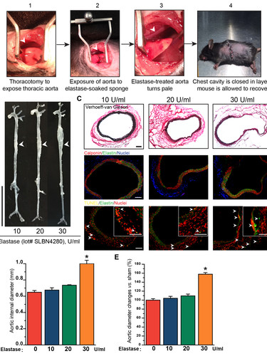 Periadventitial elastase (30 U/ml) injury-induced TAA in wild-type mice reproducibly recapitulates the main characteristics of human TAA. (Shen et al., Circulation Research, 2018.)