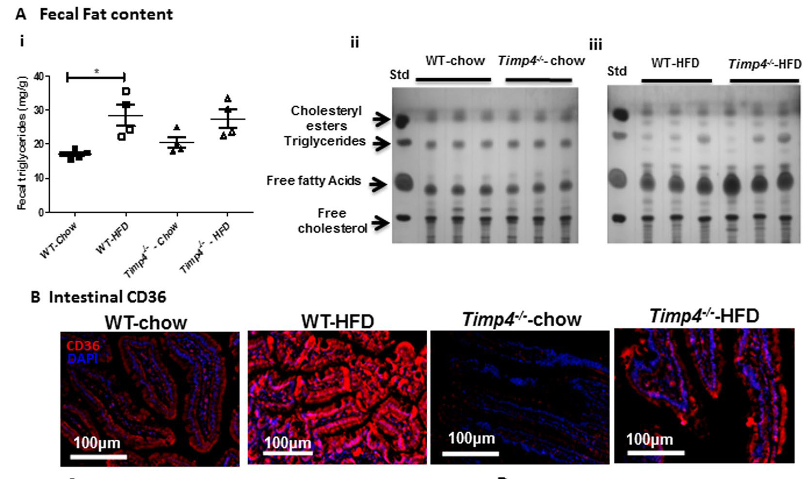 TIMP4-deficiency results in defective lipid digestion and absorption. (Sakamuri et al., Scientific Reports, 2017.)