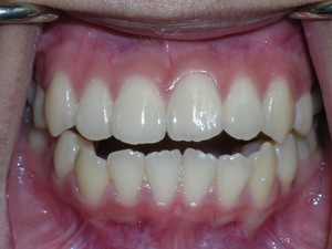Open Bite Solved with Porcelain Braces