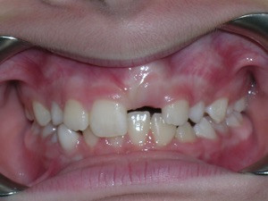 Impacted Upper Front Tooth