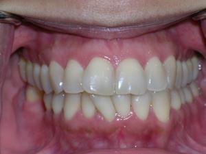 Braces with Trimming Between Teeth