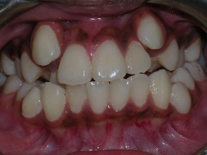 Severe Crowding Solved with Braces