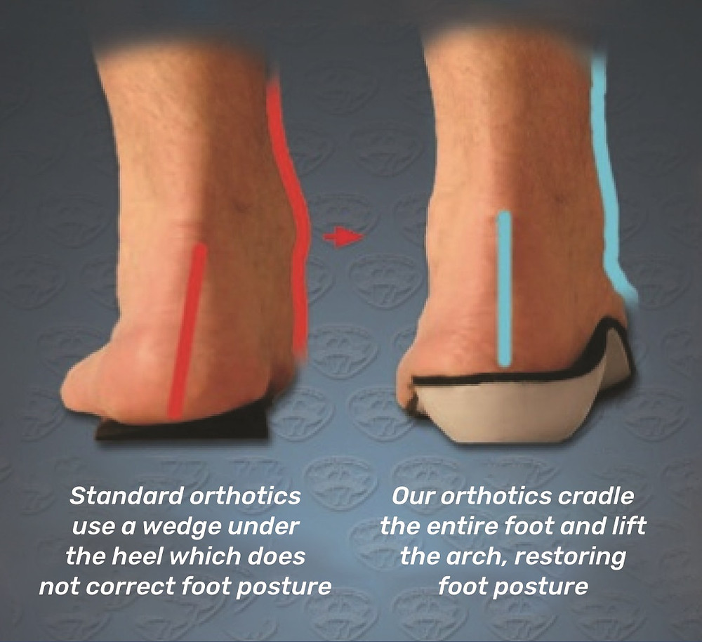 Rear view of flat, overpronated foot in standard orthotics not being able to correct alignment, but in Superior Foot Supports  orthotics being fully  corrected in alignment.