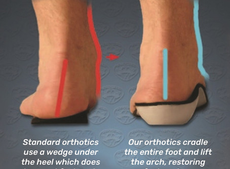 Arthritis Pain? Custom Orthotic Foot & Arch Supportive Insoles Can Help!