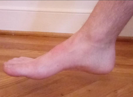 Could A Foot Like This Use Help From Custom Orthotics? Absolutely! We'll Explain Why.