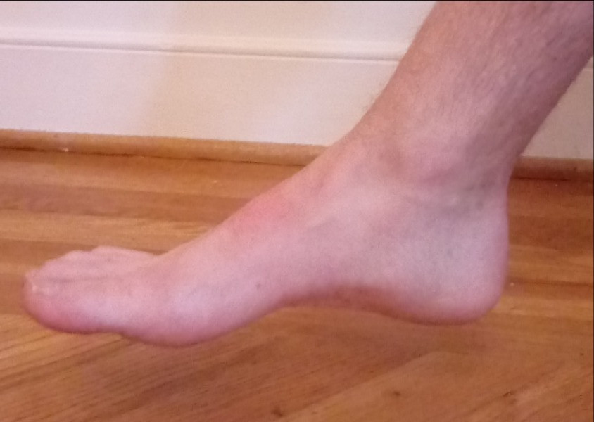 Normal alignment of the foot and arch is seen with many feet, such as this one (mine), when no weight is applied.