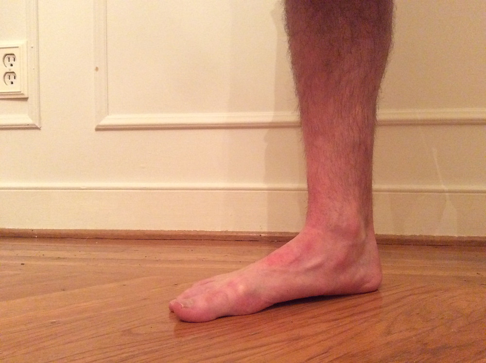 The same foot, when standing on it, shows how my arch is completely collapsed and the foot is flat.