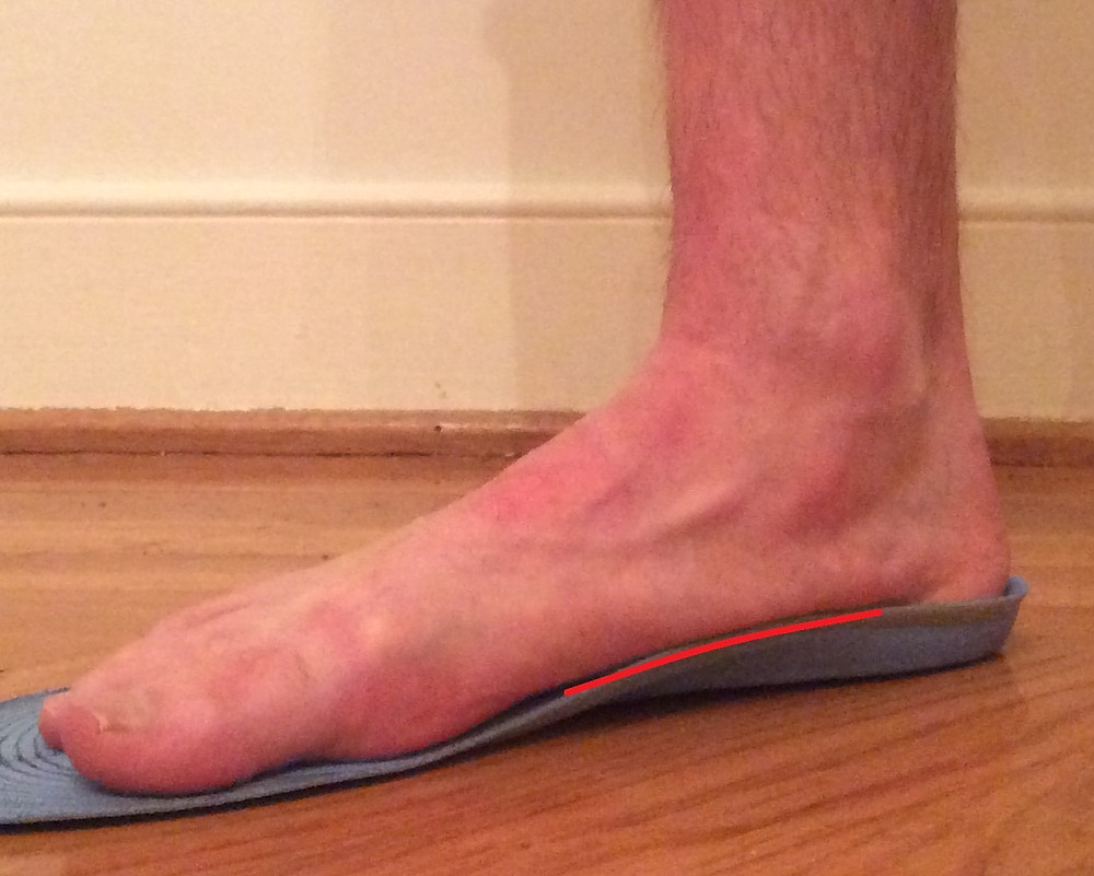 This image demonstrates how an off-the-shelf orthotic does not have either the contour or support to prevent this arch from collapsing out of alignment when standing on the device.