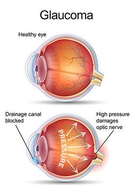 Glaucoma pic.jpg