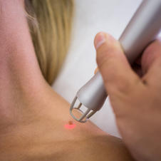 dermatologist-removing-mole-from-womans-