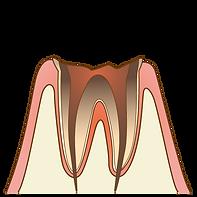 cavity005.png