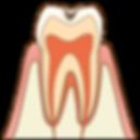 cavity001.png