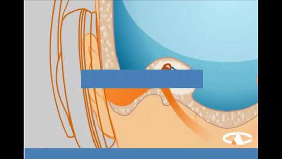 Una sencilla explicación de como funciona un Vibrador Ose