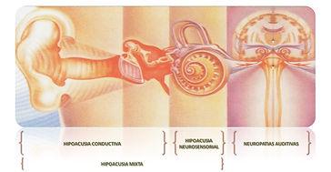 Anatomía del oído y su relación con las HIPOACUSIAS