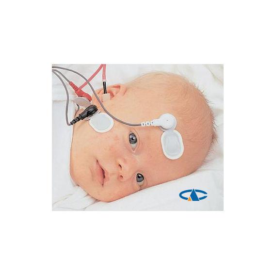 Valoración Audiológica Infantil