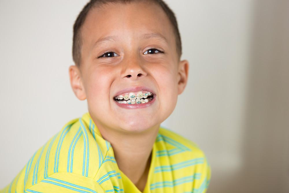 Comment trouver le meilleur orthodontiste de Montréal ?