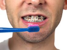 Broches dentaires avec les dents manquantes