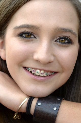 Braces colors for girl | Consultation