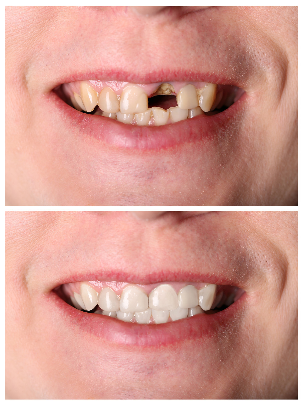 Braces with missing teeth before and after