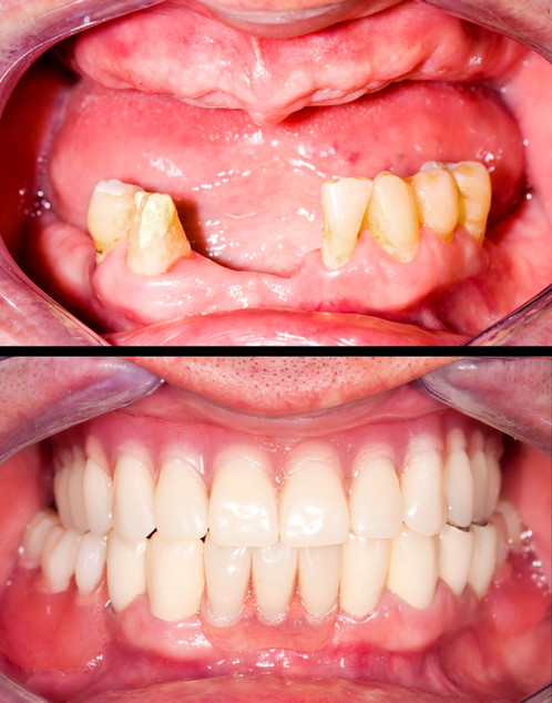 Dental rehabilitation with upper and low