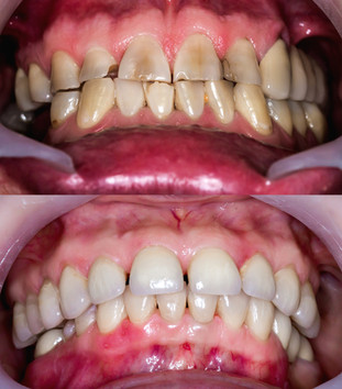 Frontal teeth before and after restorati