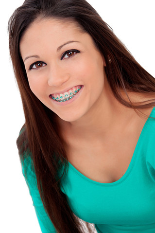 Your Braces price for Montreal, QC