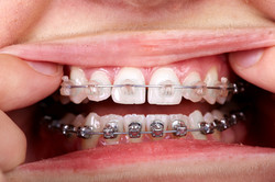 Different types of teeth braces
