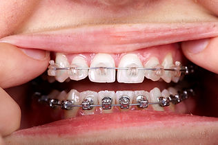 Clear braces vs invisalign in Montreal