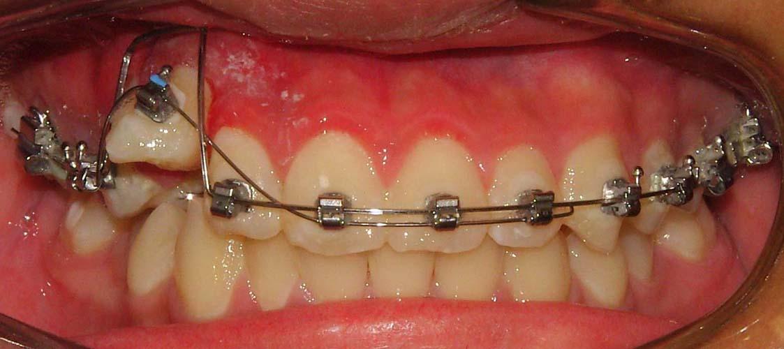 Braces retainer types picture 2