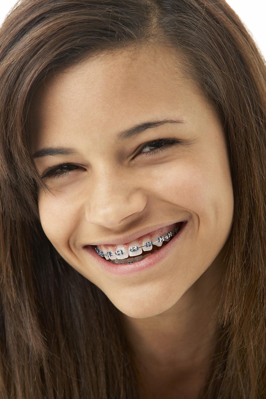 Site Orthodontist Braces price in Montreal, Quebec