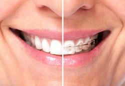 Healthy woman teeth...