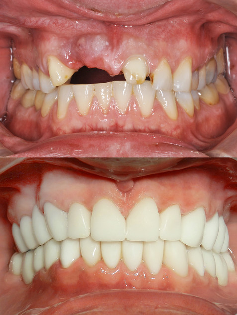 A close up of a patient's mouth at a den