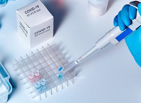 Obaveštenje o proceduri zakazivanja i uzimanja PCR testova u Domu zdravlja Kruševac