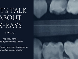 Let's Talk About X-Rays!