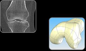 3D knee image.jpg